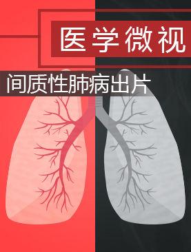 医学微视-间质性肺病出片