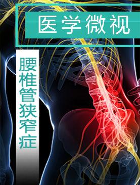 医学微视-腰椎管狭窄症