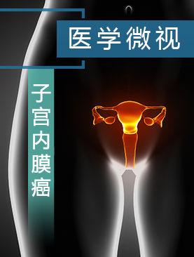 医学微视-子宫内膜癌
