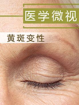 医学微视-黄斑变性