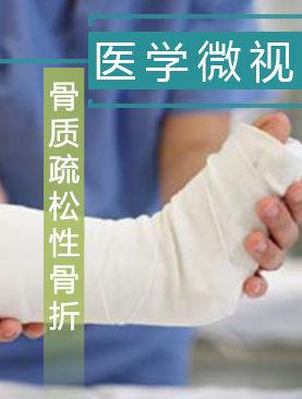 医学微视-骨质疏松性骨折
