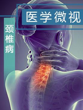 医学微视-颈椎病