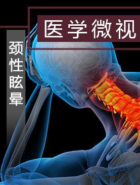 医学微视-颈性眩晕