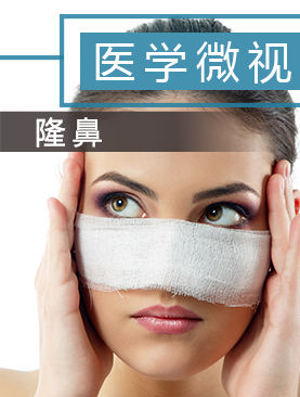 医学微视-隆鼻