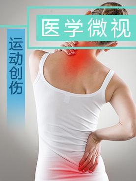 医学微视-运动创伤