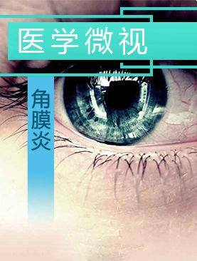 医学微视-角膜炎