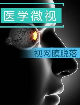 医学微视-视网膜脱落