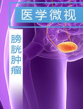 医学微视-膀胱肿瘤
