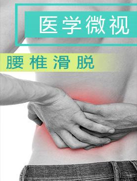 医学微视-腰椎滑脱
