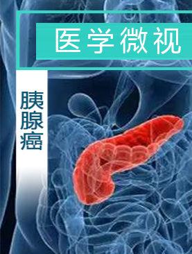 医学微视-胰腺癌