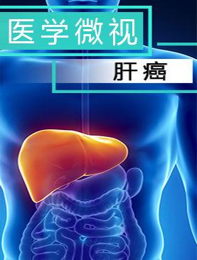 医学微视-肝癌