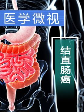 医学微视-结直肠癌