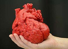 创新创业故事:3D打印器官