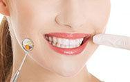这些美白牙齿小妙招可能在毁牙