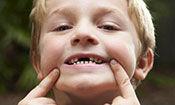 儿童龋齿-01:龋齿是怎么回事?