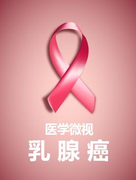医学微视-乳腺癌