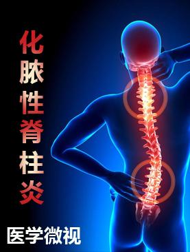 医学微视-化脓性脊柱炎