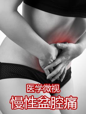 医学微视-慢性盆腔痛