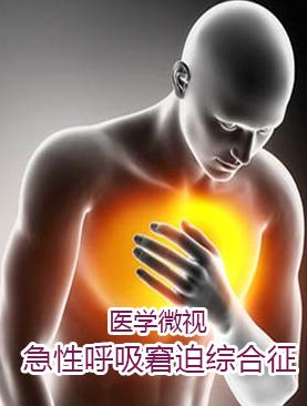 医学微视-急性呼吸窘迫综合征