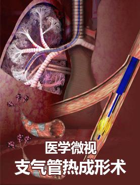 医学微视-支气管热成形术