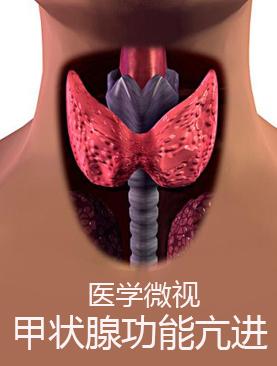 医学微视-甲状腺功能亢进