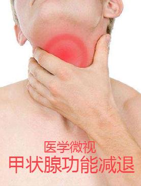医学微视-甲状腺功能减退