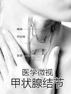 医学微视-甲状腺结节