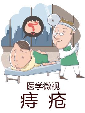 医学微视-痔疮