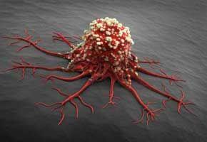 消灭癌细胞就能抗癌吗