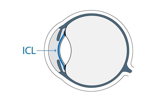 ICL01:什么是可植入式隐形眼镜(ICL)?