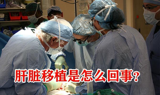 肝脏移植是怎么回事?