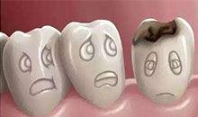 奇点3分钟—蛀牙和糖到底有什么关系?