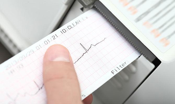 地震能预测吗