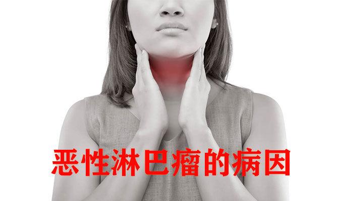 恶性淋巴瘤的病因