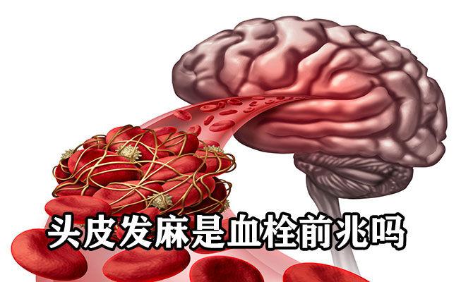 头皮发麻是血栓前兆吗