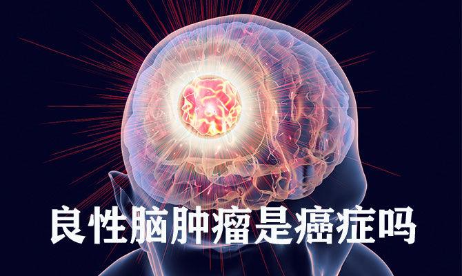 良性脑肿瘤是癌症吗