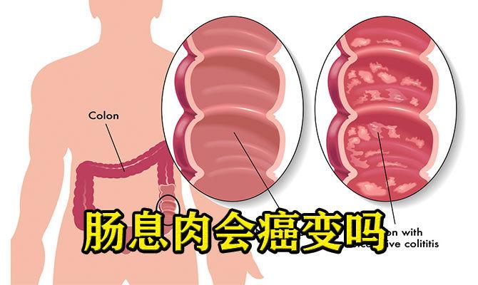 肠息肉会癌变吗