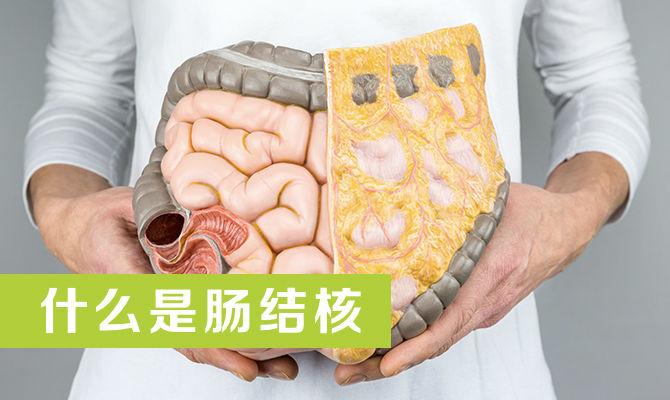 《医学短片》28:什么是肠结核