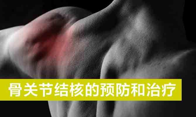 骨关节结核的预防和治疗
