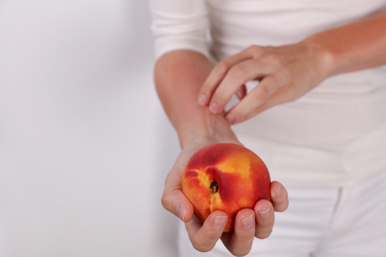 敲黑板!食物过敏可不是多吃吃就能免疫的!