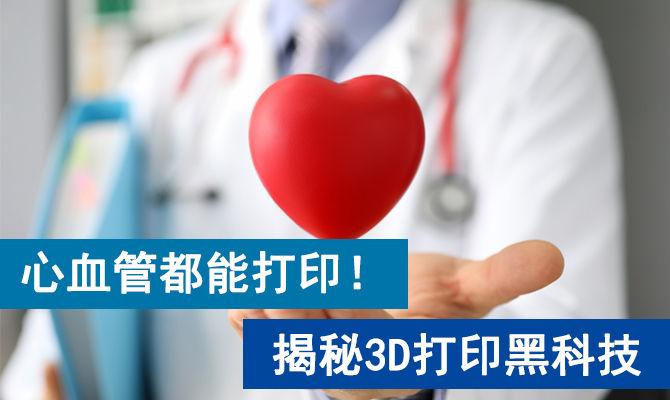 心血管都能打印!揭秘3D打印黑科技